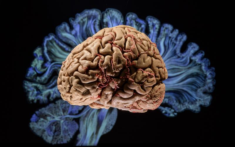 Exposição Cérebro – mais vasto que o céu
