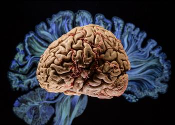 Cérebro – mais vasto que o céu