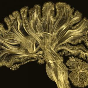 Cérebro — mais vasto que o céu